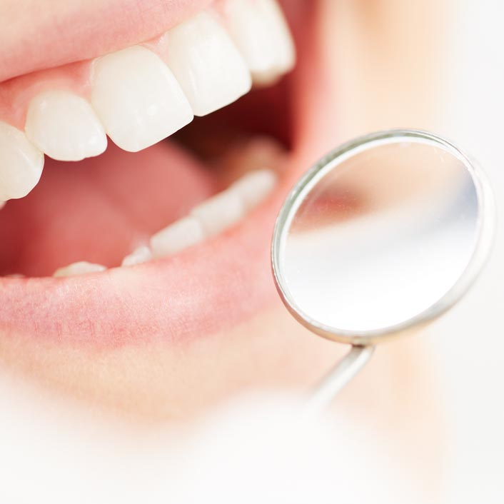 Dental Cleanings - Dental Services